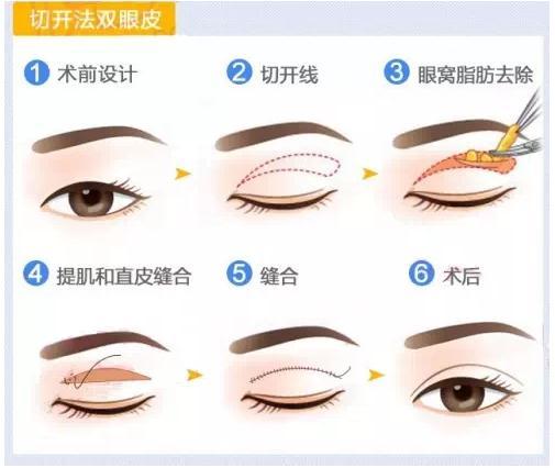 什么样的眼睛割双眼皮需要开眼角