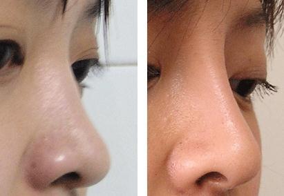 成都华西整形医院综合隆鼻手术效果如何?