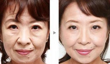微创面部提升效果怎么样