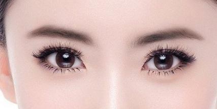 割双眼皮的种类有哪些