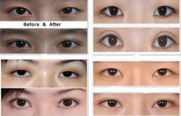 韩式纳米无痕双眼皮大概要多少钱啊