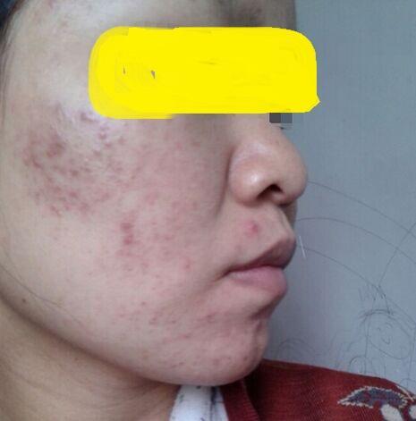 脸上的痘痘还没有下去又长了很多黑黑红红的痘印,怎么办啊
