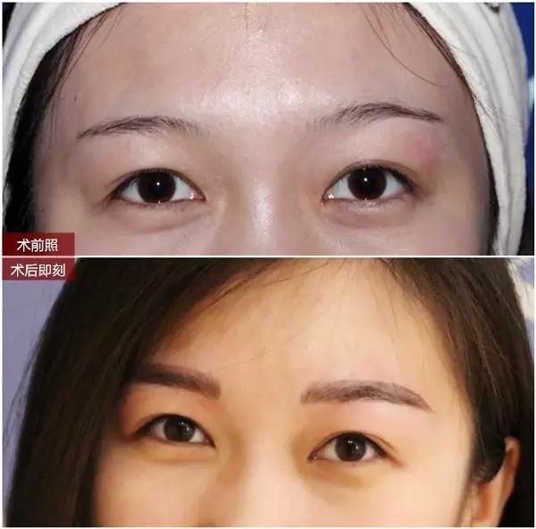 yestar韩国半永久定妆术任性素颜