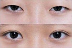 南京韩式双眼皮手术的优点有哪些