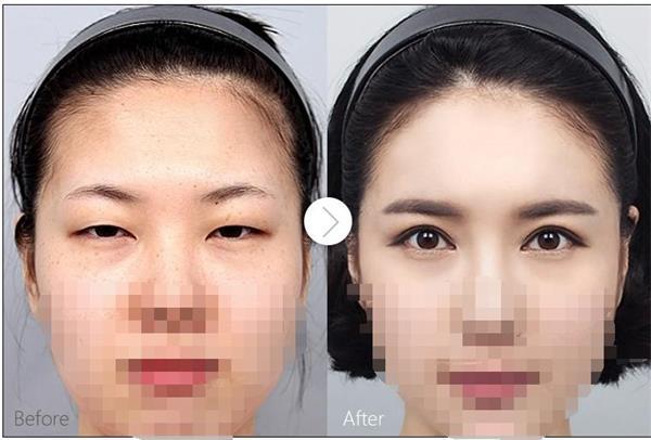 南京双眼皮和开眼角手术可以同时做吗