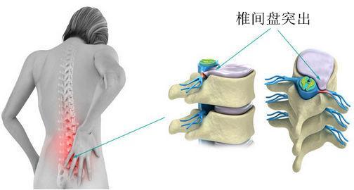 腰腿疼痛、坐骨神经痛该如何治疗?