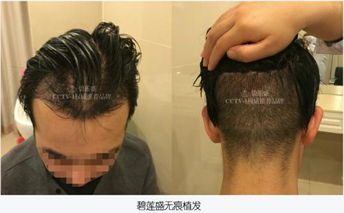 无痕植发与有痕植发区别
