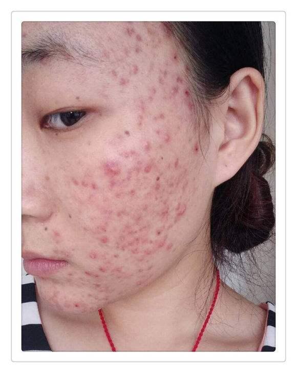 脸上痘痘严重很多年能修复好吗