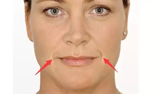 木偶纹和法令纹一样,是我们常见的皮肤皱纹.