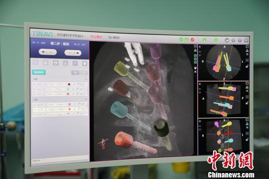 """揭秘""""中国造""""骨科手术机器人:误差仅0.8毫米"""