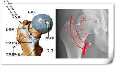 股骨头坏死等髋关节疾病的康复锻炼