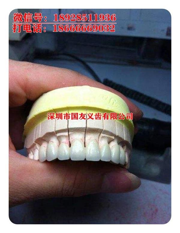 深圳厂家直销 价格优惠 德国进口泽康 威兰德全瓷牙价格优惠 全瓷牙的