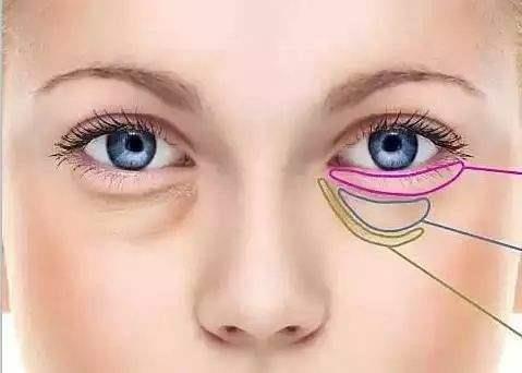 通过手术方法去除眼袋后,不但恢复青春容颜,还能矫正下睑内翻和倒睫的