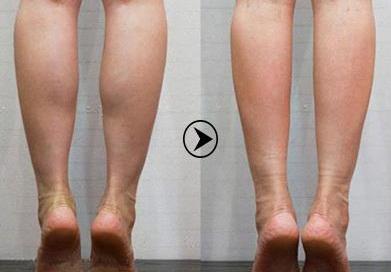 腿部打溶脂针视频教程