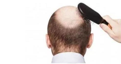 植发后多久可以看到效果?广州科发源植头发医院图片