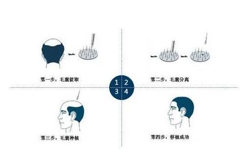 3植发手术是什么意思